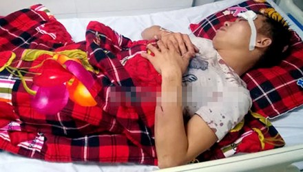 Nạn nhân đang được điều trị tại BVĐK Cửa Đông, theo những tin tức pháp luật mới nhất