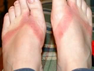 Đi dép tông nhiều không tốt cho đôi chân