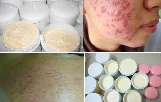 Thực hư việc tắm trắng gây ung thư da