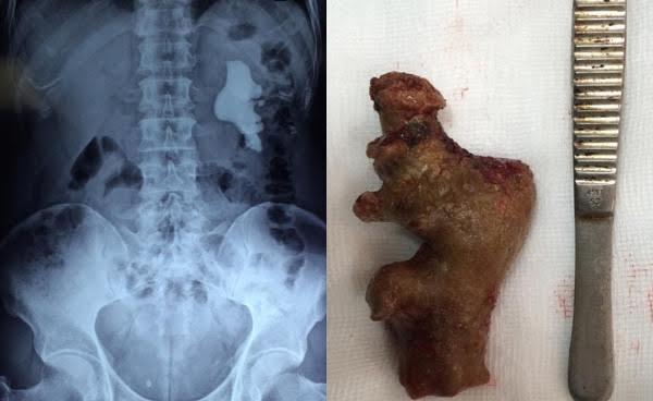 """Hình ảnh """"viên"""" sỏi thận trong cơ thể bệnh nhân đã dài 11cm"""