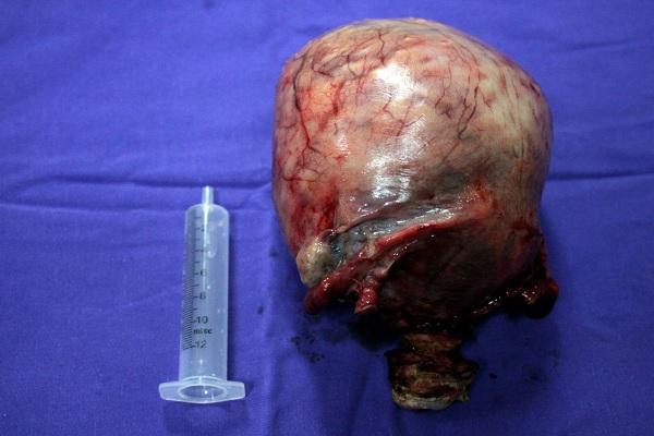 Khối u bị vôi hóa nặng gần 2kg được lấy ra khỏi bụng của bệnh nhân