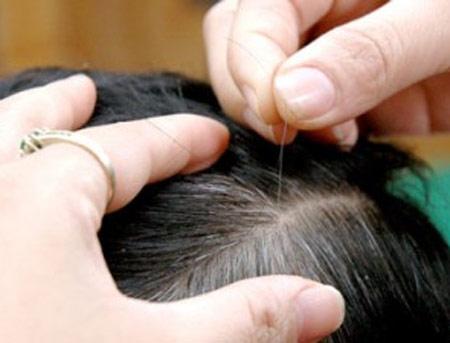 vị trí tóc bạc cũng giúp chúng ta đoán bệnh cơ thể