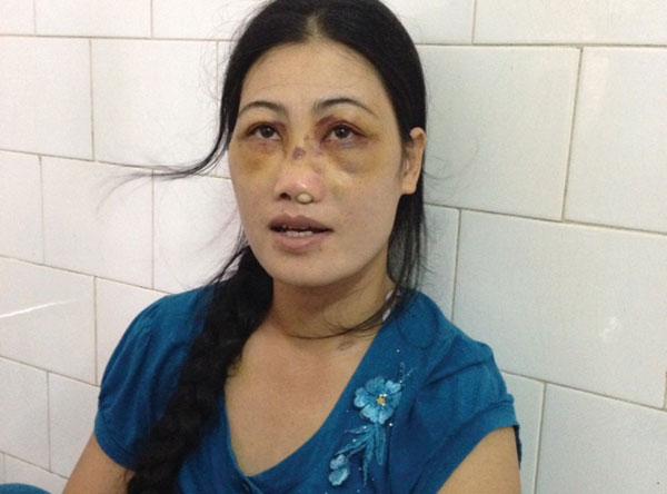 phẫn nộ với hành vi chồng bắt vợ ăn phân lợn ở Nam Định 3