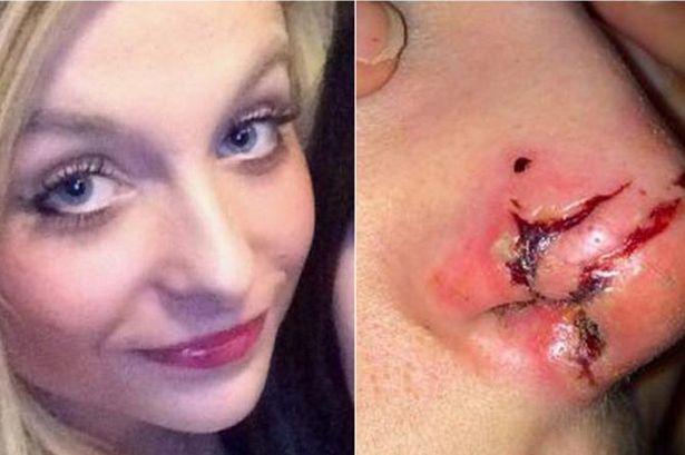 Vụ án hy hữu khi Laura bị một phụ nữ tấn công dã man vào mặt ngay trên phố