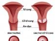 Cảnh giác 7 dấu hiệu ung thư cổ tử cung