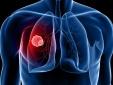 5 dấu hiệu phát hiện bệnh ung thư phổi sớm