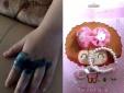 Kinh hoàng bàn tay bé gái bị phồng rộp nhiễm trùng vì chơi nhẫn đồ chơi Trung Quốc