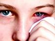 Nguy cơ mù lòa vì các sản phẩm trang điểm kém chất lượng