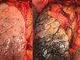 Những thực phẩm quen thuộc chứa nhiều chất asen có thể gây ung thư phổi