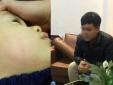Bé trai 22 tháng tuổi bị bác sĩ tát đỏ mặt tại phòng khám vì 'cơn nóng giận nhất thời'
