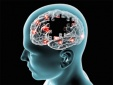 Bệnh Parkinson: Thừa canxi có thể gây nguy hiểm