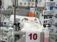 Bé trai 7 tuổi suy đa cơ quan nguy kịch vì mắc sốt xuất huyết