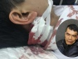 Hải Phòng: Bị giữ xe do vi phạm đối tượng thẳng tay rút dao đâm Công an