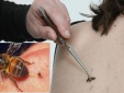 Hi hữu: Người phụ nữ 55 tuổi mất mạng vì châm cứu bằng cách cho ong đốt