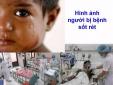Cảnh báo: 10 địa phương có nguy cơ dịch sốt rét quay trở lại