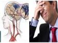 Đột quỵ nhẹ sau cơn thiếu máu não thoáng qua nhiều người mắc, chủ quan có thể tử vong