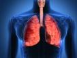 Không khí ô nhiễm nghiêm trọng - Bảo vệ sức khỏe như thế nào?