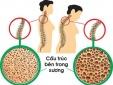 Cảnh báo: Người dùng thuốc corticosteroid trị hen suyễn có nguy cơ bị loãng xương