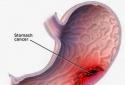 Cách phòng trị bệnh ung thư dạ dày ở người lớn