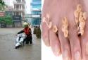 Mùa mưa và những nguy cơ khiến đôi bàn chân thành 'tật'