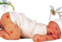Biện pháp phòng chống dịch sốt xuất huyết mà ai cũng nên biết