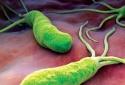 Người nhiễm vi khuẩn HP có khả năng bị ung thư cao hơn bình thường