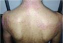 Toàn thân chảy mủ vì dùng đông y không rõ nguồn gốc chữa bệnh