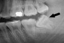 Thai phụ phải đình chỉ thai kỳ vì chiếc răng khôn mọc lệch