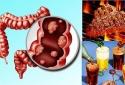 Muốn không bị ung thư trực tràng hãy tránh xa những thực phẩm này