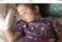 Sau 2 ngày đi bơi, cô bé 4 tuổi nhập viện vì 'chết đuối khô'