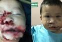 Hà Nội: Bé trai 2 tuổi bị chó đẻ cắn nát mặt, tổn thương nghiêm trọng
