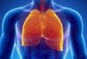Ung thư phổi: Những dấu hiệu mắc bệnh nhiều người chủ quan