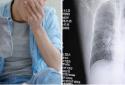 Thói quen ngửi tất bẩn khiến người đàn ông mắc viêm phổi
