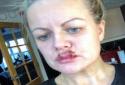 Bà mẹ bốn con suýt mù vì chất làm đầy môi