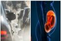 Bà bầu tiếp xúc nhiều với không khí ô nhiễm có thể bị sảy thai