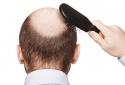 Sử dụng thuốc trị hói đầu có thể làm tăng nguy cơ trầm cảm ở nam giới