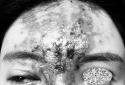 Mũi hỏng nặng sau tiêm filler tại một spa do người quen giới thiệu