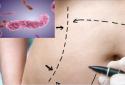 Đi hút mỡ bụng cho eo thon cô gái tử vong do nhiễm phải 'vi khuẩn ăn thịt người'
