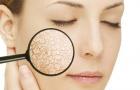 Tự chế mặt nạ cho làn da khô