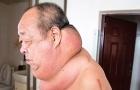 Mang khối u lạ, cổ người đàn ông 'phát phì'
