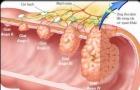 Ung thư dạ dày phát triển thần tốc bởi thói quen khiến nhiều người 'ngã ngửa'