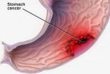 Ung thư dạ dày: Sát thủ giấu mặt tiềm ẩn xung quanh mỗi người
