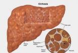 Người bị bệnh gan nên ăn gì để phòng bệnh?