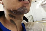 Bỏng nặng vì chất tẩy rửa bồn cầu không nhãn mác bắn vào mặt