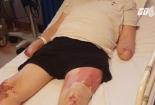 Người đàn ông mất cả chân lẫn tay sau 1 ngày tưởng là cảm lạnh