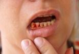 90% người Việt bị sâu răng, viêm lợi