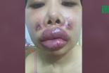 Cô gái biến dạng gương mặt vì tiêm chất làm đầy