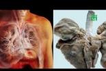 Nam thanh niên 'nuôi' cả bầy sán trong phổi vì món ăn quen thuộc
