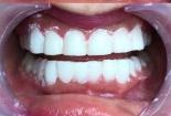 Hiểm hoạ từ răng phun sứ nano