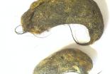 Kinh hoàng khối u tóc trong bụng bệnh nhi 7 tuổi do thói quen thường gặp